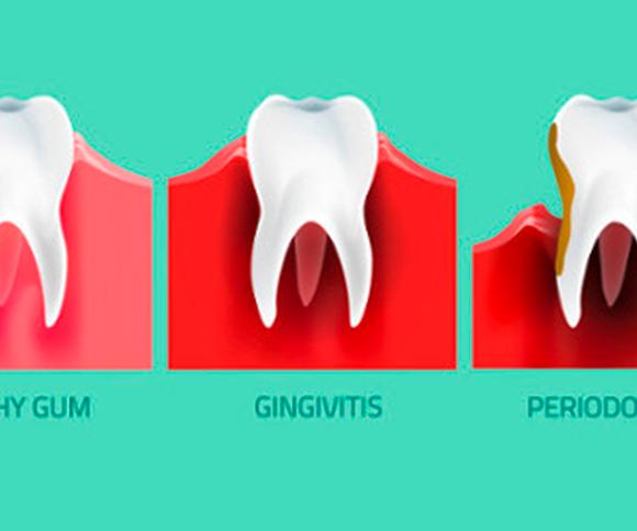 ¿Que es la Gingivitis?